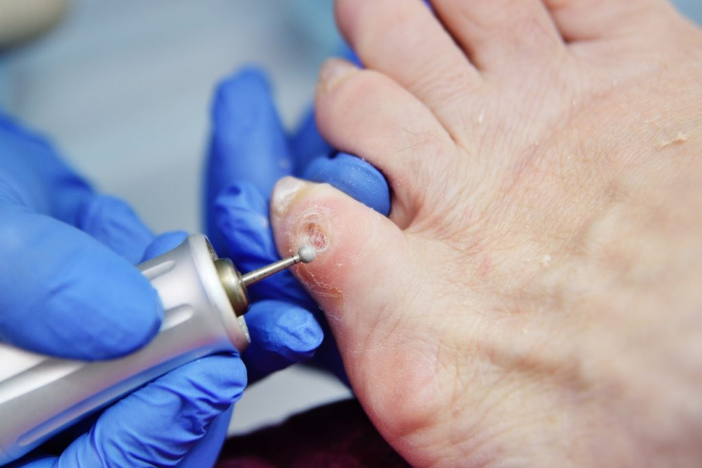 excision of calluses on the toe with a pedicure machine